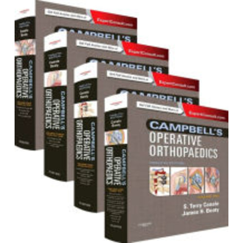Campbell's Operative Orthopaedics: 4-Volume Set (Expert Consult Premium Edition - Enhanced Online Features and Print) / Edition 12