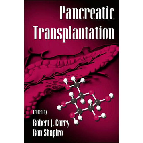 Pancreatic Transplantation