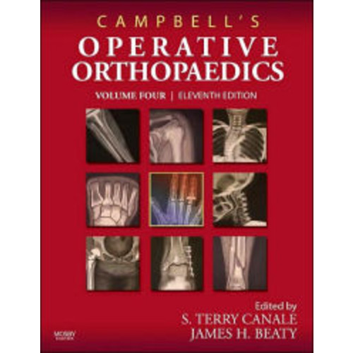 Campbell's Operative Orthopaedics: 4-Volume Set with DVD / Edition 11