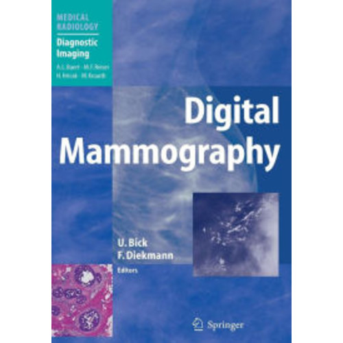 Digital Mammography / Edition 1